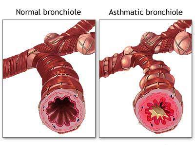 external image asthma2.jpg