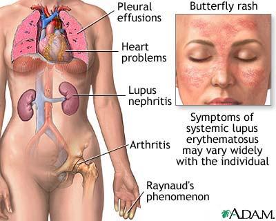 systemic lupus erythematosus built