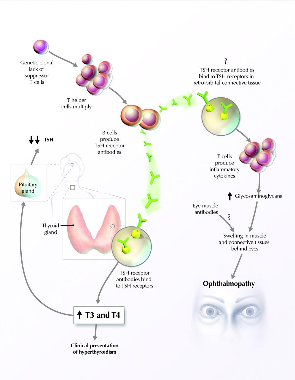 http://www.bio.davidson.edu/courses/immunology/students/spring2003/breedlove/gdiseasefigure6.jpg